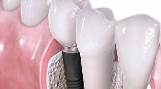 Especialistas implantes dental navarro