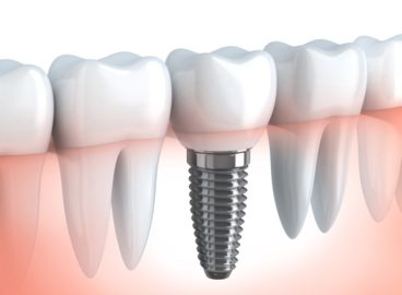 implantes dentales en madrid